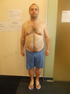 VIVERE SNELLA MEDICAL: ANGELO D. PERSI 35 kg IN 10 MESI!