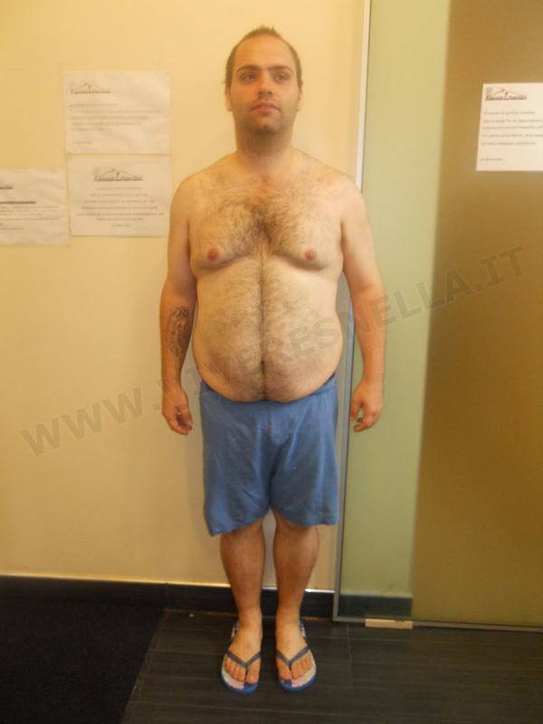 VIVERE SNELLA MEDICAL: ANGELO D. PERSI 35 kg IN 10 MESI!