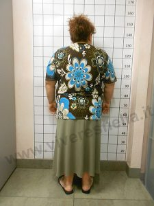 VIVERE SNELLA MEDICAL, CENTRI DIMAGRIMENTO MILANO: ELENA RUSSI DIMAGRITA DI 33 Kg E 198 cm IN 6 MESI E MEZZO!
