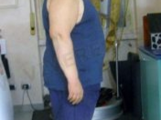 VIVERE SNELLA MEDICAL: ANGELO FERRARA, PERSI 26 kg!