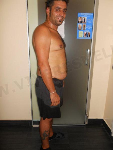 VIVERE SNELLA MEDICAL: PAOLO STRADA PERSI 30 kg IN 3 MESI!
