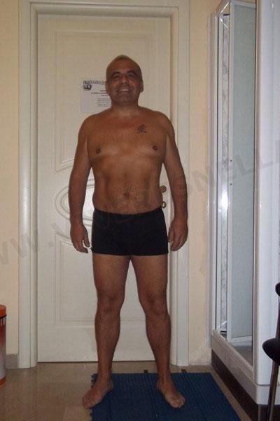 VIVERE SNELLA MEDICAL: FABRIZIO SCHINOCCA, PERSI 20 kg IN 3 MESI!
